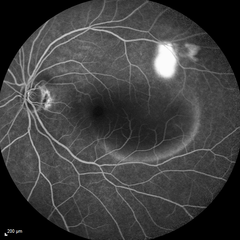 Fluorescein Angiography Macular Degeneration